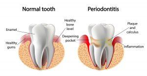 Periodontal disease UDCE Blog