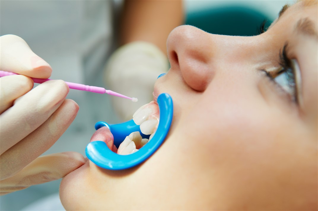 Does Dental Sealant Help Prevent Cavities?