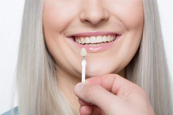 Dental Veneers Edmonton
