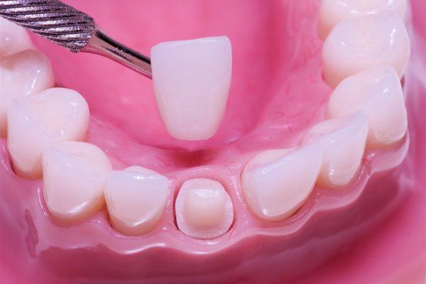 Dental Crown Edmonton