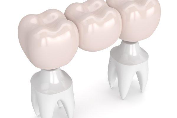 Dental Bridge Edmonton