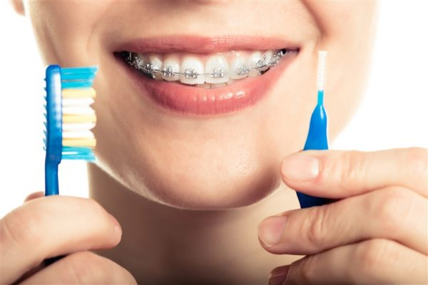 Dental Braces Edmonton